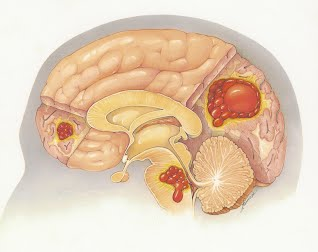 Brain with Cavernous Angiomas